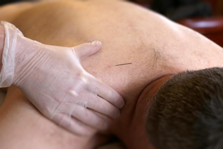 dry needling massage cheltenham gloucestershire annie white